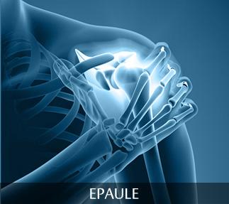 Chirurgie de l'épaule - Centre Orthopédique Santy - Lyon