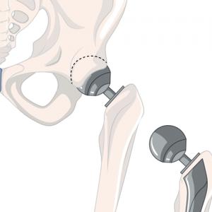 Pathologies du Membre Inférieur - Prothèse Totale de Hanche