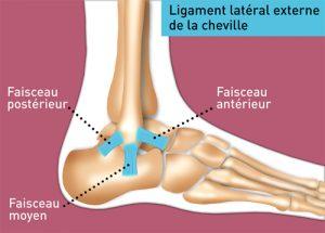 rupture ligament latéral externe