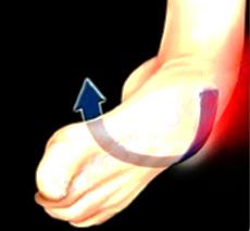 Ligamentoplastie de cheville : Les faisceaux antérieur et moyen du Ligament Latéral Externe sont le plus souvent atteints lors d'un traumatisme (1ere partie)