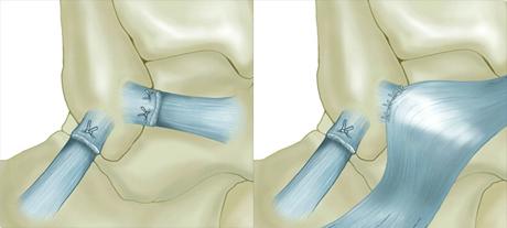 Ligamentoplastie de cheville  : L'intervention de ligamentoplastie selon Brostom Gould consiste à retendre les faisceaux antérieur et moyen du ligament latéral externe et à les renforcer à l'aide du ligament frondiforme.