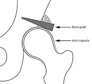 Traitement conservateur de la dysplasie de hanche : la butée arthroplastique de hanche